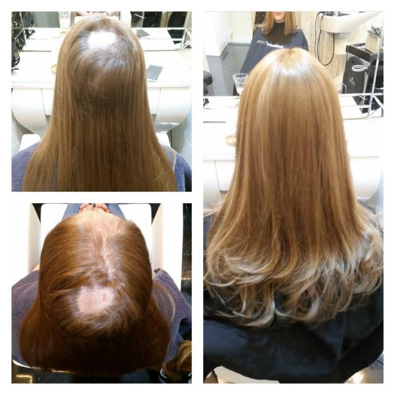 haarverdichtung alopezie