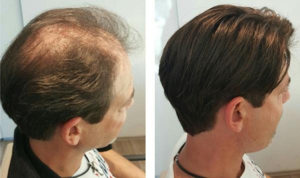 Haarverdichtung Männer