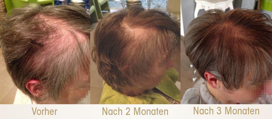3 Monate Intensivtherapie Haarausfall #PHTElixir