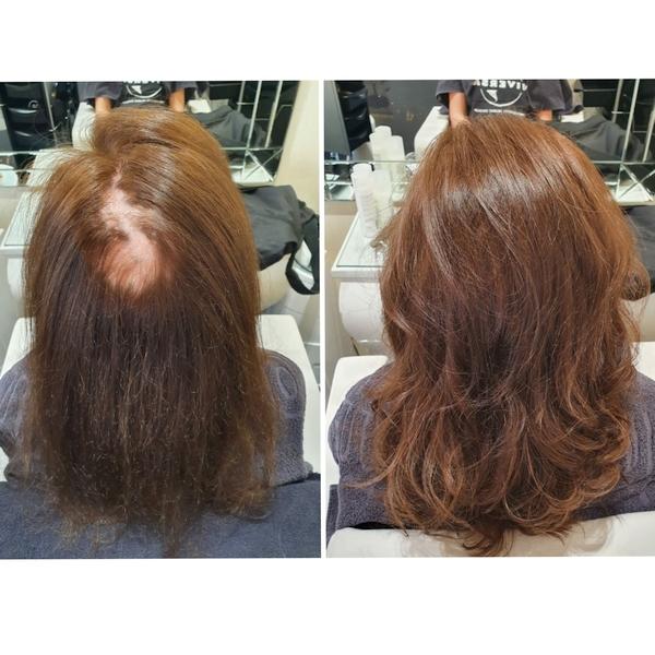 Haarverdichtung für Frauen